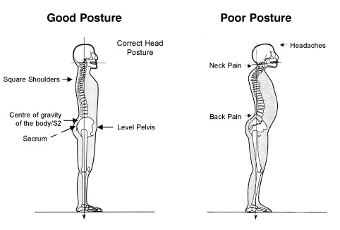 Forward Head Posture Comparison